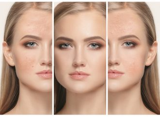 4 Ways to Treat Acne Scarring